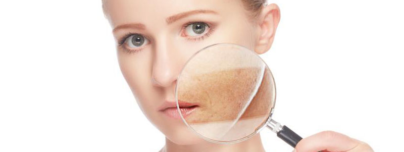 Como quitar manchas de sol de la cara