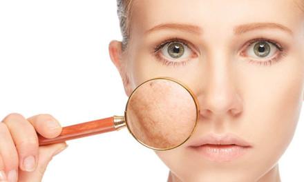 Solución a las manchas de piel por el Sol