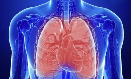 Termoplastia Bronquial es efectiva